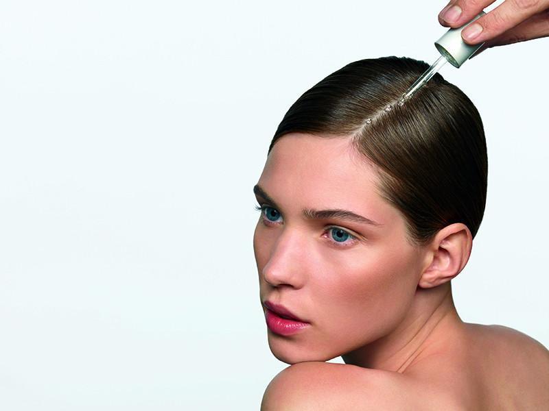 prhlaj in izpadanje las: vzroki