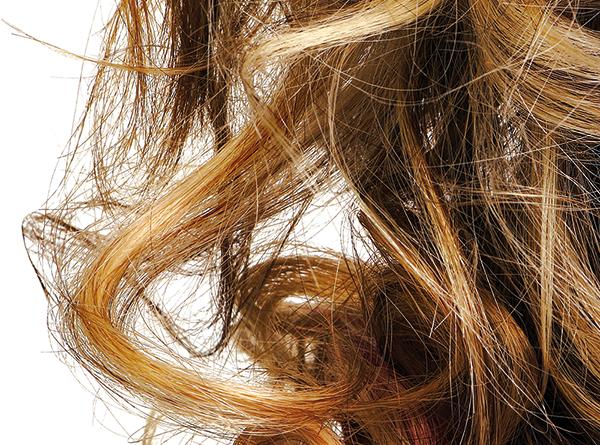 izpadanje las pri ženskah