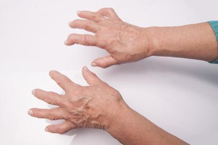 Putika je varianta bolečega artritisa