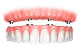 Zobni implantat postopek